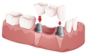 Ponti dentali in Croazia impianti